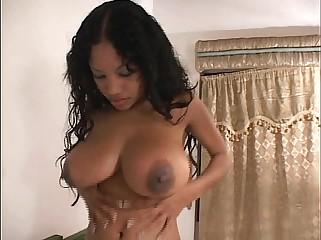 Anna Martinez -Amputee